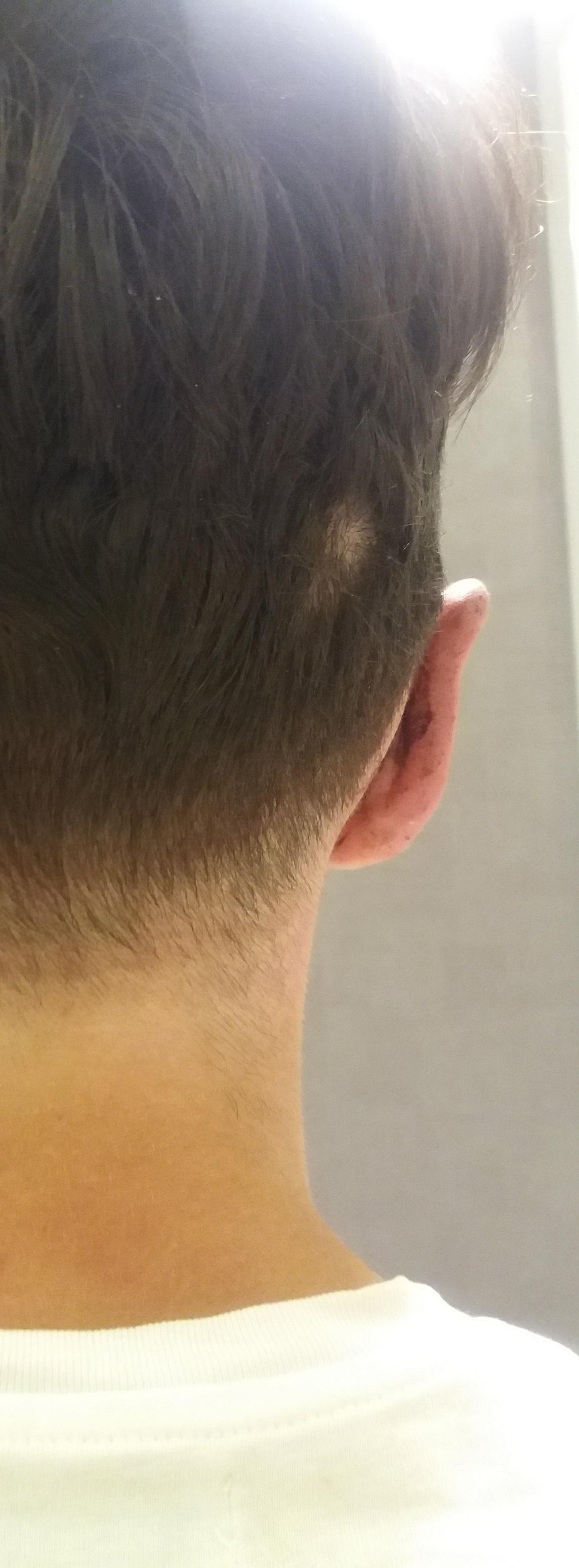 korekta odstających uszu Kraków po 5