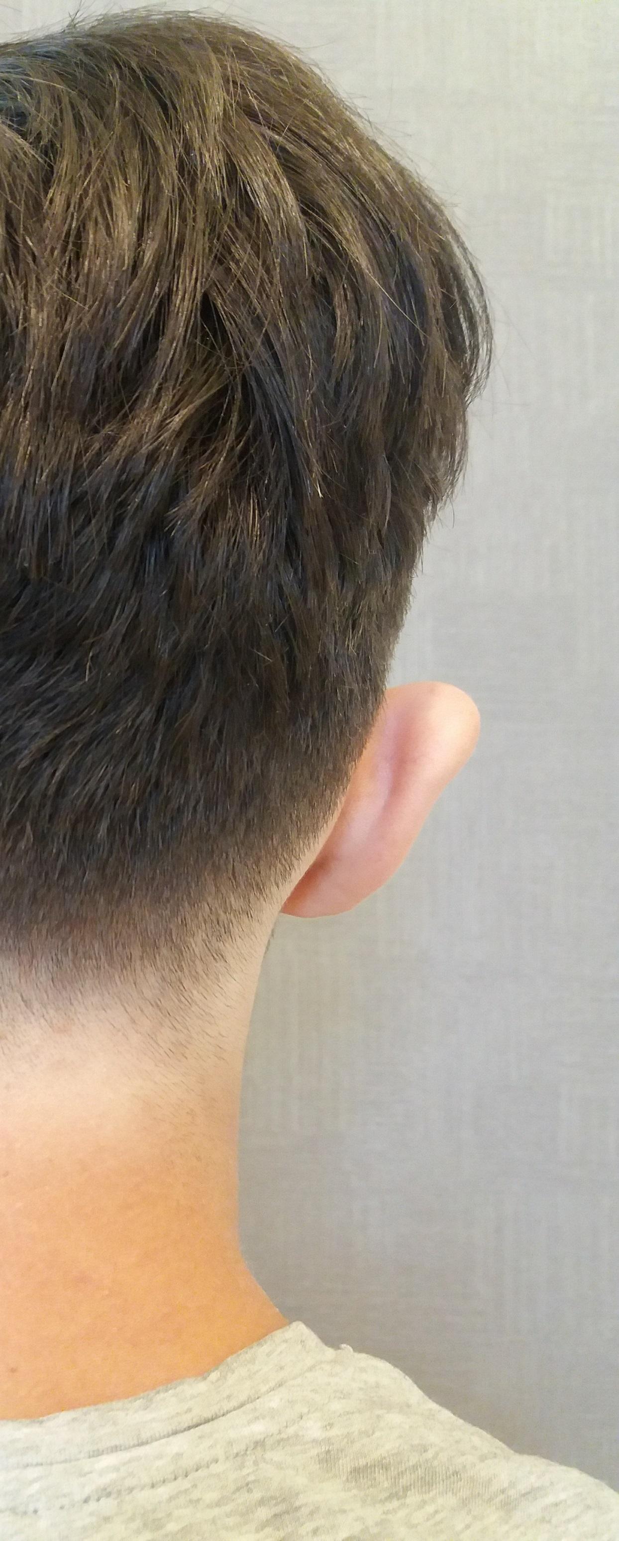 korekta odstających uszu Kraków przed 5
