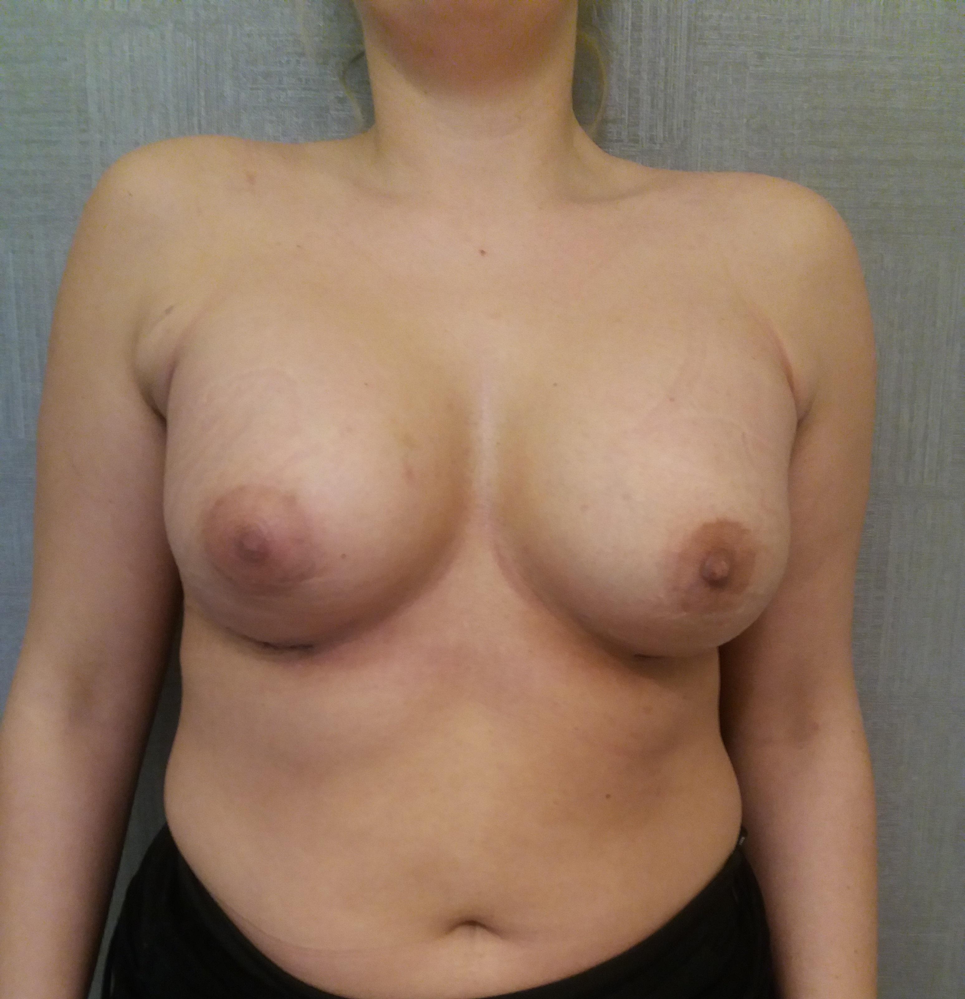 powiększenie piersi implantami Kraków po 3