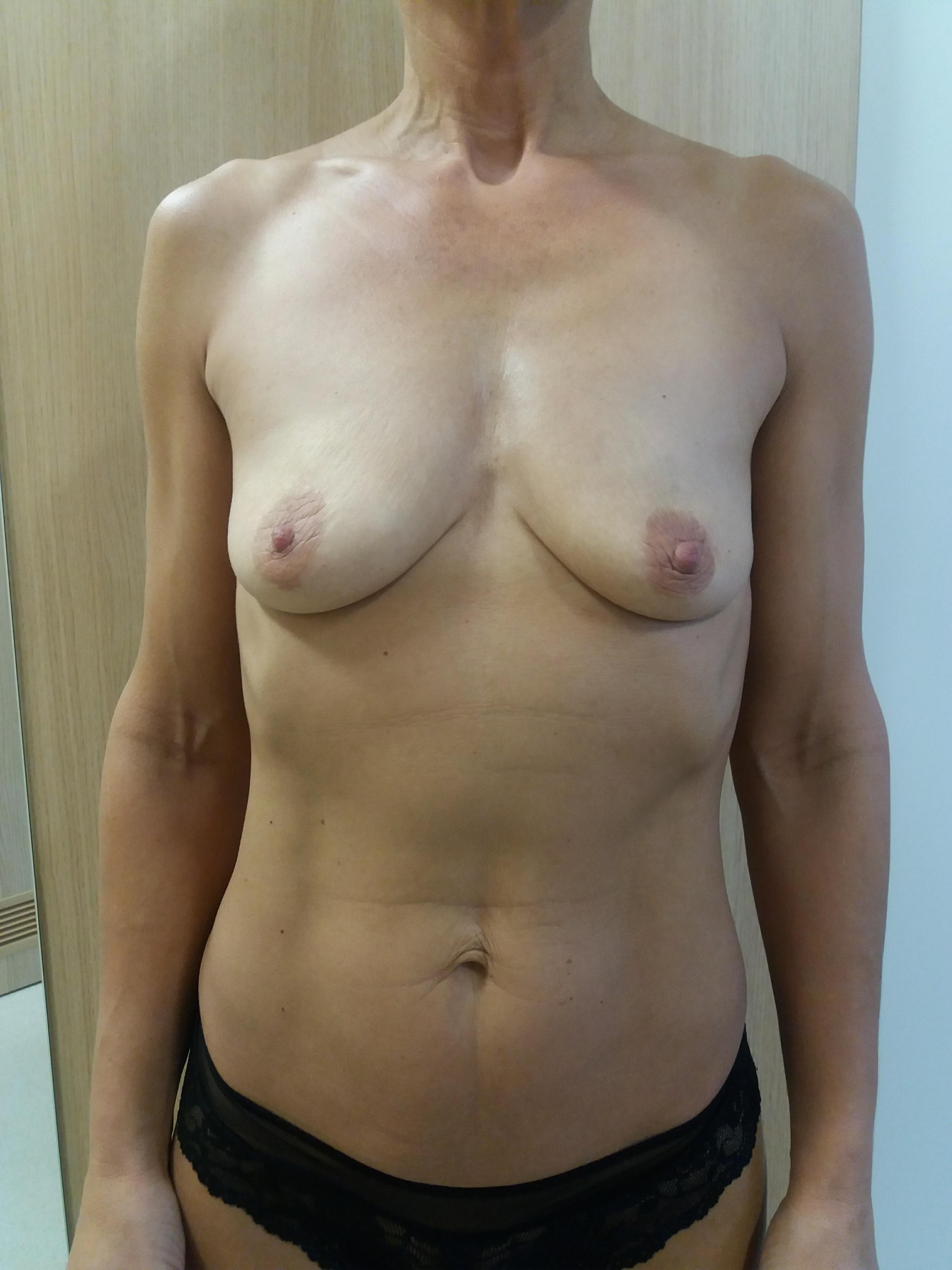 powiększenie piersi implantami Kraków przed 2