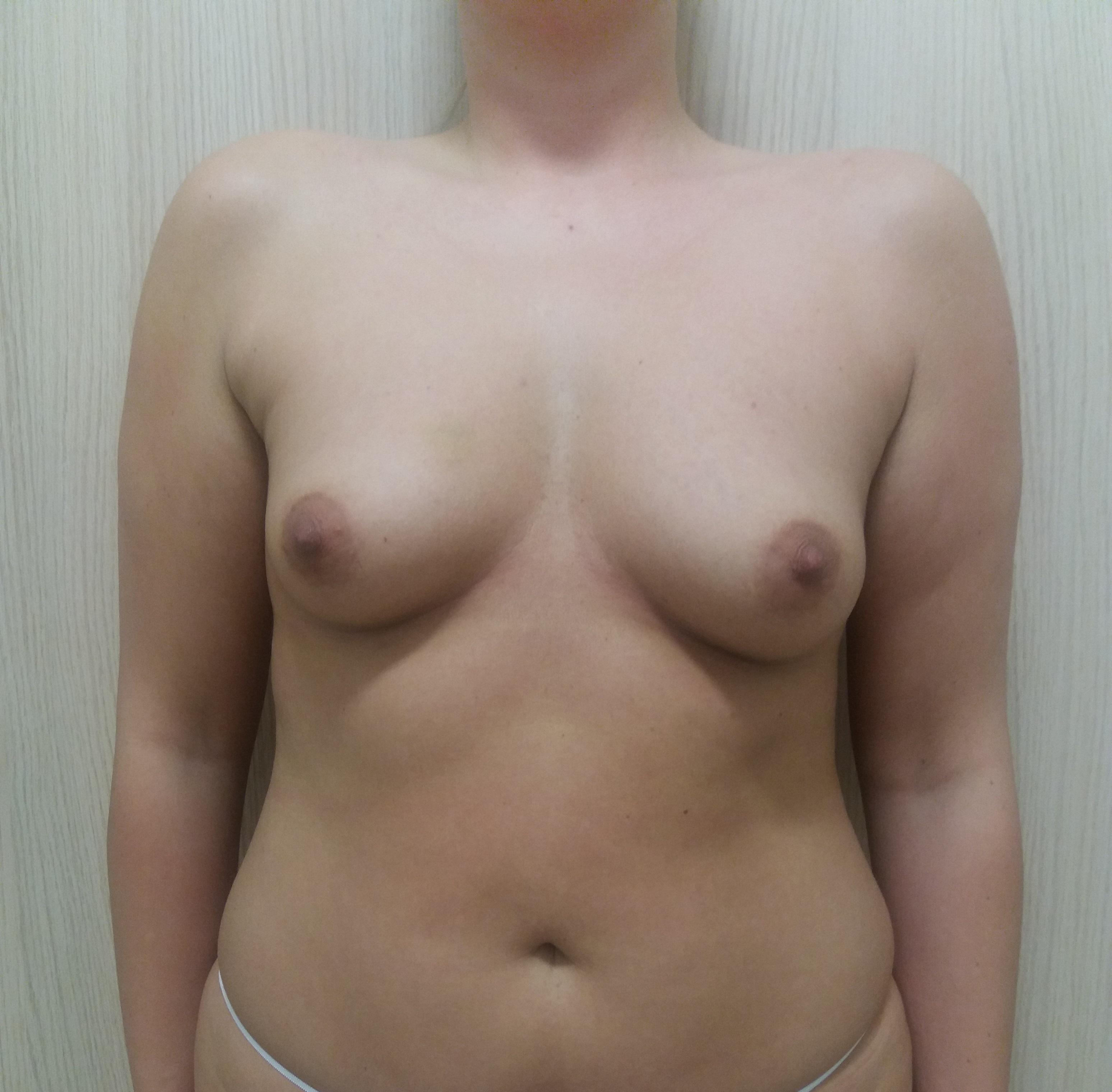 powiększenie piersi implantami Kraków przed 3