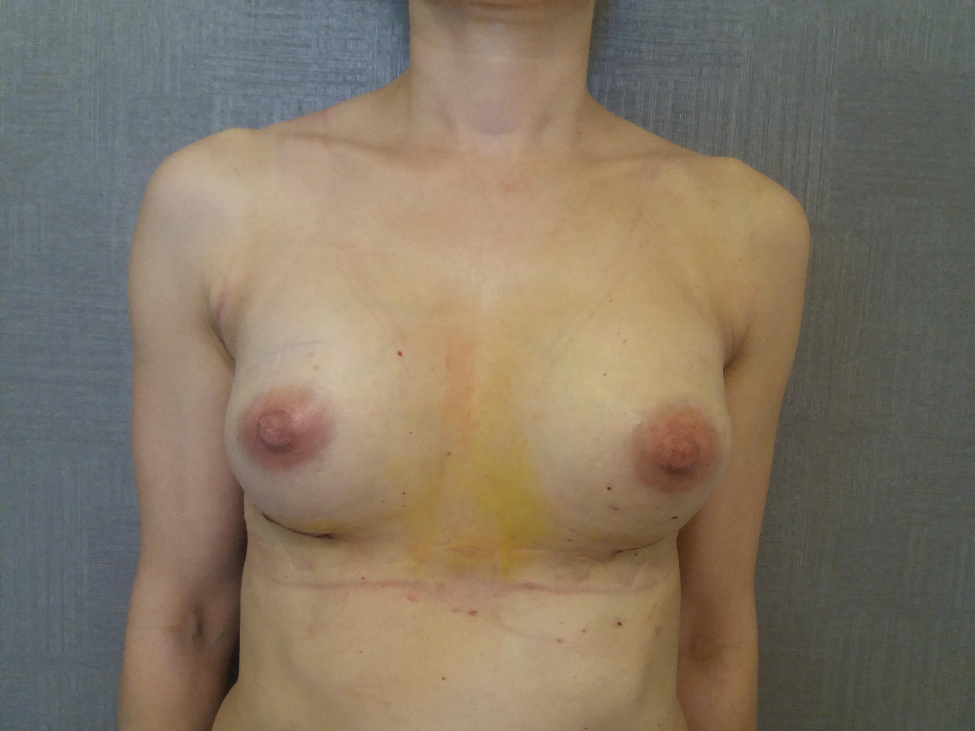 powiększenie piersi implantami silikonowymi chirurg plastyczny kraków dr Jędrys PO (1)