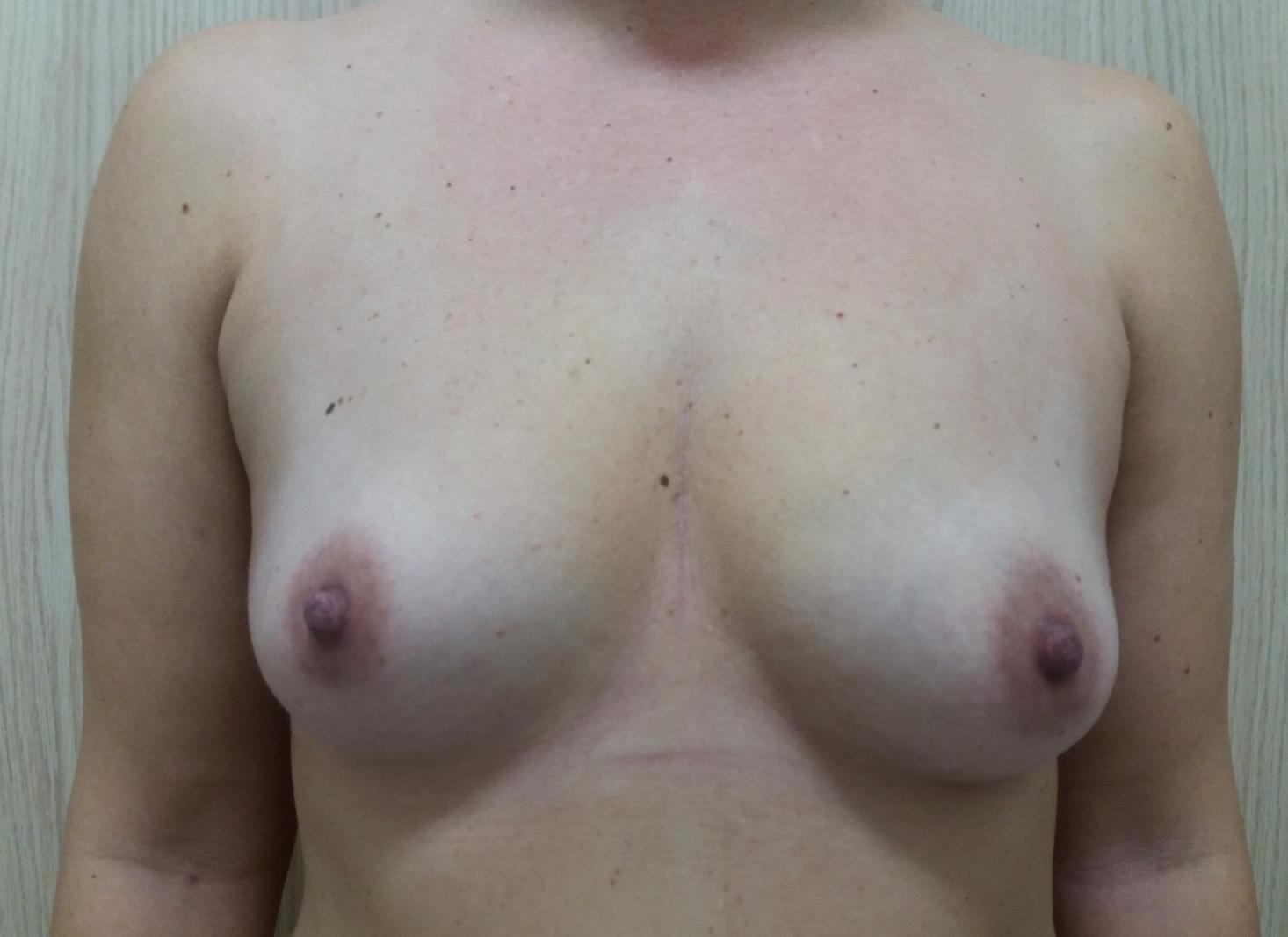 przeszczep-tłuszczu-do-piersi-PRZED-1