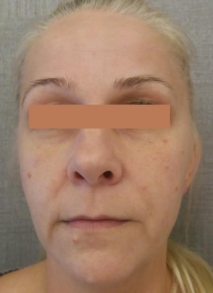 przeszczep-tłuszczu-do-twarzy-PRZED-1