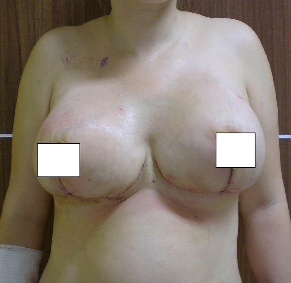 redukcja-piersi-po-3