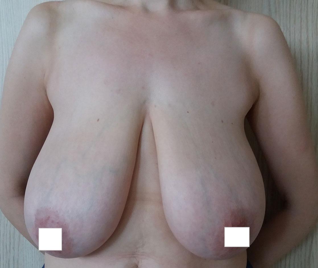 redukcja-piersi-przed-1